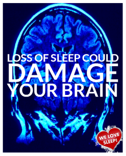 Loss of Sleep Could Damage Your Brain